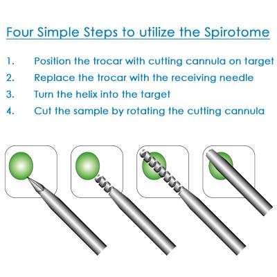 SpirotomeSteps-400